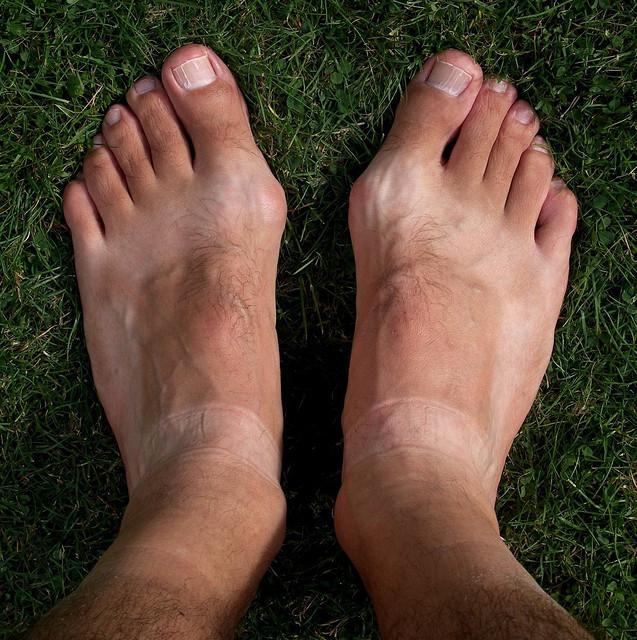 mast od gaveza za liječenje deformacija stopala i brže zarastanje